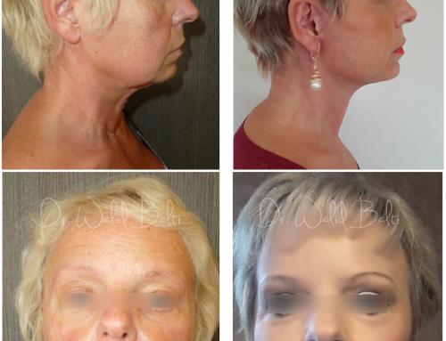 Blépharoplastie, lifting cervico-facial & lipofilling du visage