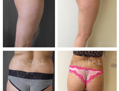 Lipofilling des fesses : brazilian butt lift