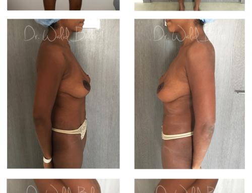 Lipoaspiration, plastie abdominale cure diastasis musculaire & plastie mammaire de réduction avec lifting des seins