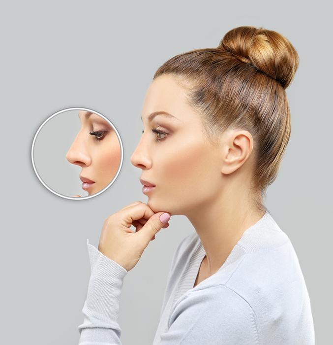 en savoir plus sur la chirurgie esth tique du nez la rhinoplastie. Black Bedroom Furniture Sets. Home Design Ideas