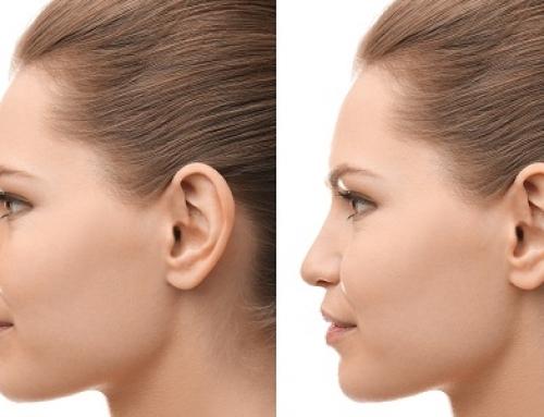 Ce qu'il faut savoir à propos de l'ablation de la bosse nasale