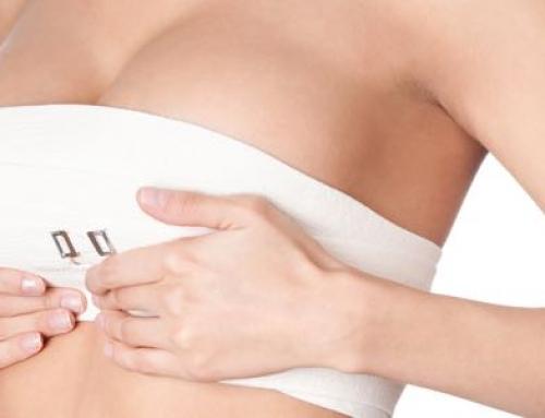 Ai-je besoin d'un lifting mammaire ?