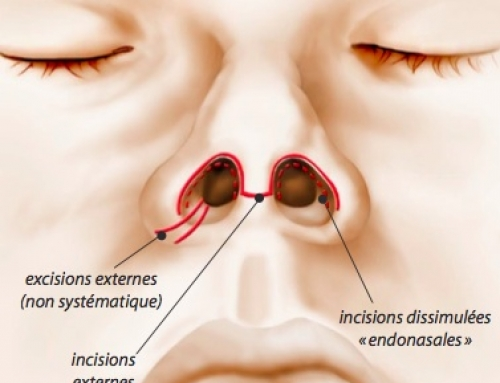 Les voies d'abord de la rhinoplastie : technique ouverte ou fermée