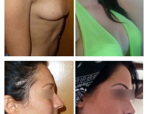 Augmentation mammaire et rhinoplastie