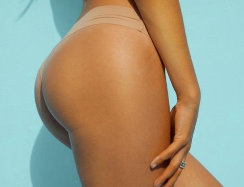 Le lipofilling traite différentes imperfections des fesses