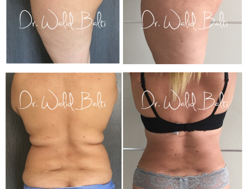 Liposuccion plus plastie abdominale