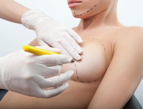 Les possibilités offertes par le lifting des seins