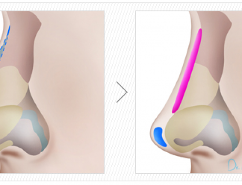 Définition et projection du nez : découvrez les objectifs de la rhinoplastie d'augmentation