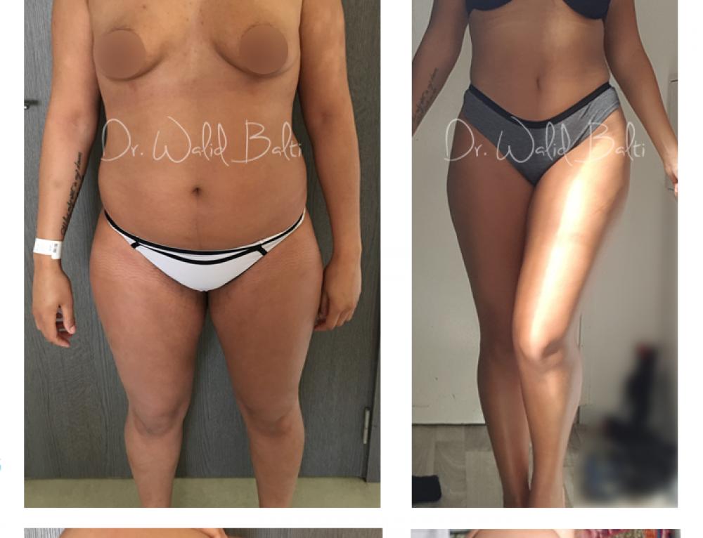Lipoaspiration,  Lipofiling fesses et Augmentation mammaire par prothèses