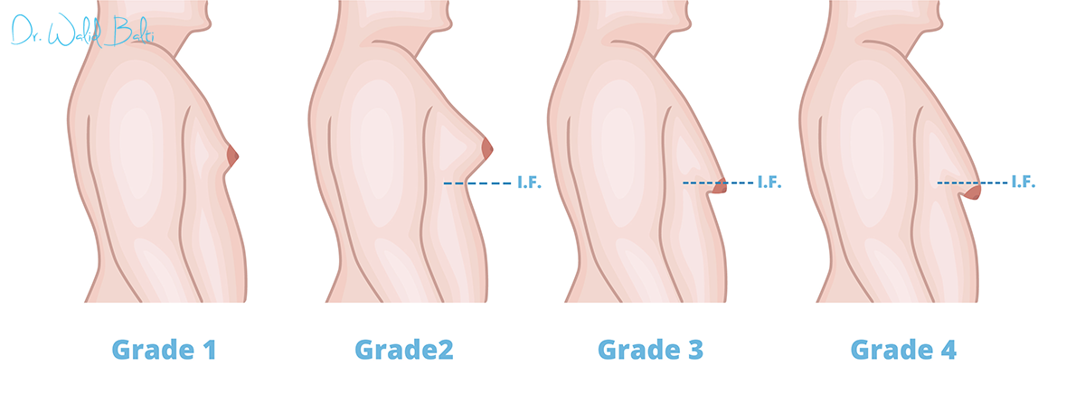 la gynecomastie tunisie
