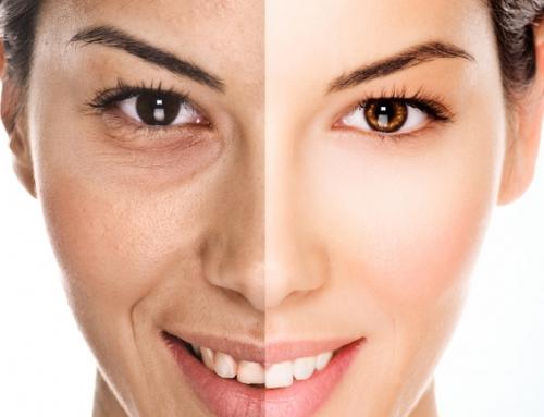 Comment combler les 'creux' du visage ?