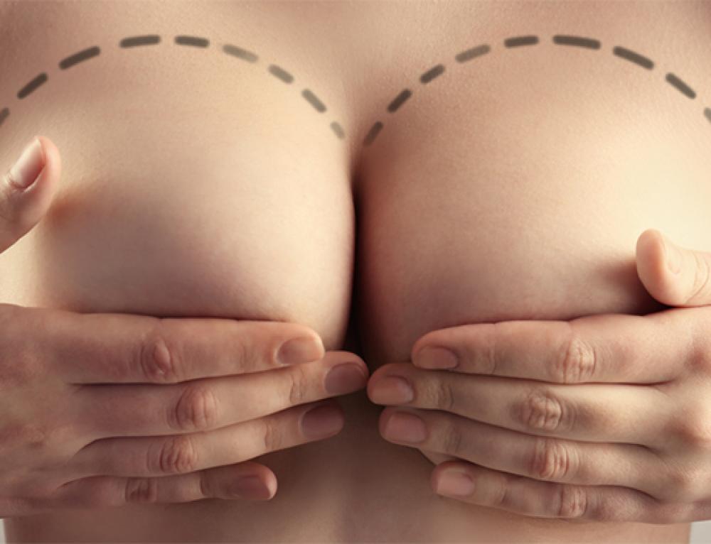 Vous souhaitez obtenir le meilleur résultat possible de votre augmentation mammaire ? Suivez ces conseils