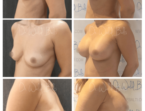 Augmentation mammaire (Prothèses mammaires en polyuréthane)