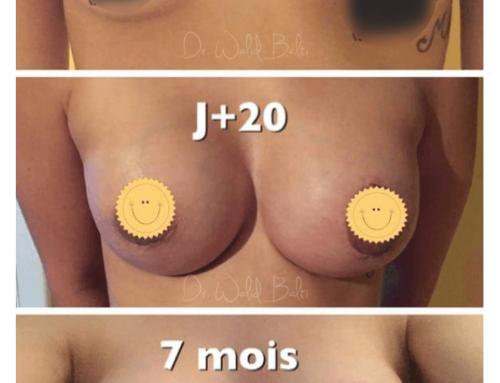 Augmentation mammaire avec lifting aréolaire