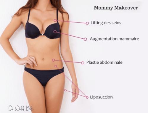 Quels sont les différents types de Mommy Makeover ?