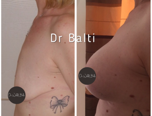 Plastie mammaire d'augmentation