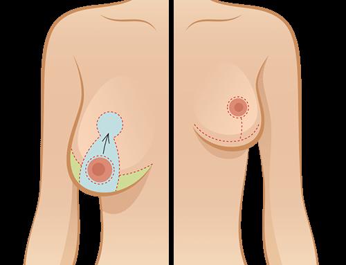 Réduction mammaire : quand est-ce qu'une liposuccion suffit ?