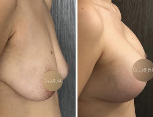 Augmentation et lifting mammaire