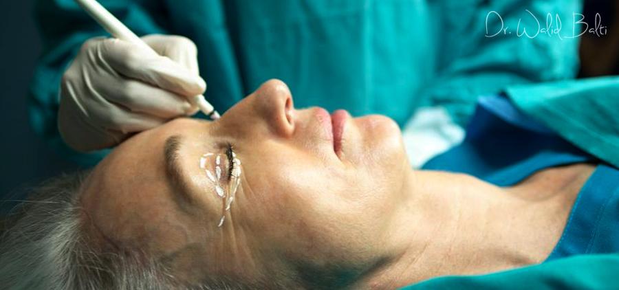 bienfaits chirurgie esthetique paupieres tunisie