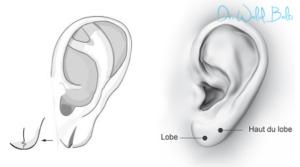 chirurgie lobe oreille tunisie