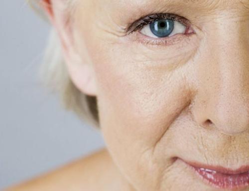 Les solutions pour combattre les signes de l'âge