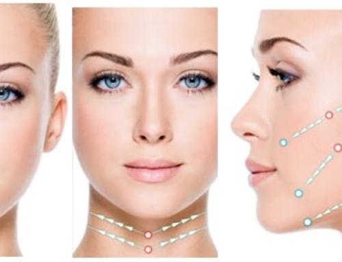 Lifting du visage : son action sur la couche musculaire