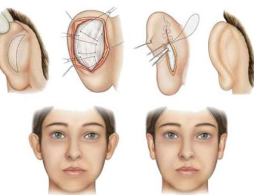 Corriger les déformations des oreilles et l'usure des lobes