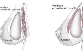 position implants mammaires tunisie