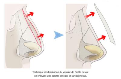 rhinoplastie esthetique arete nasale tunisie