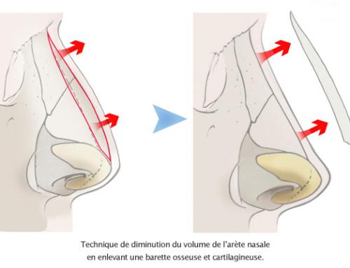 Rhinoplastie : correction de l'arête nasale