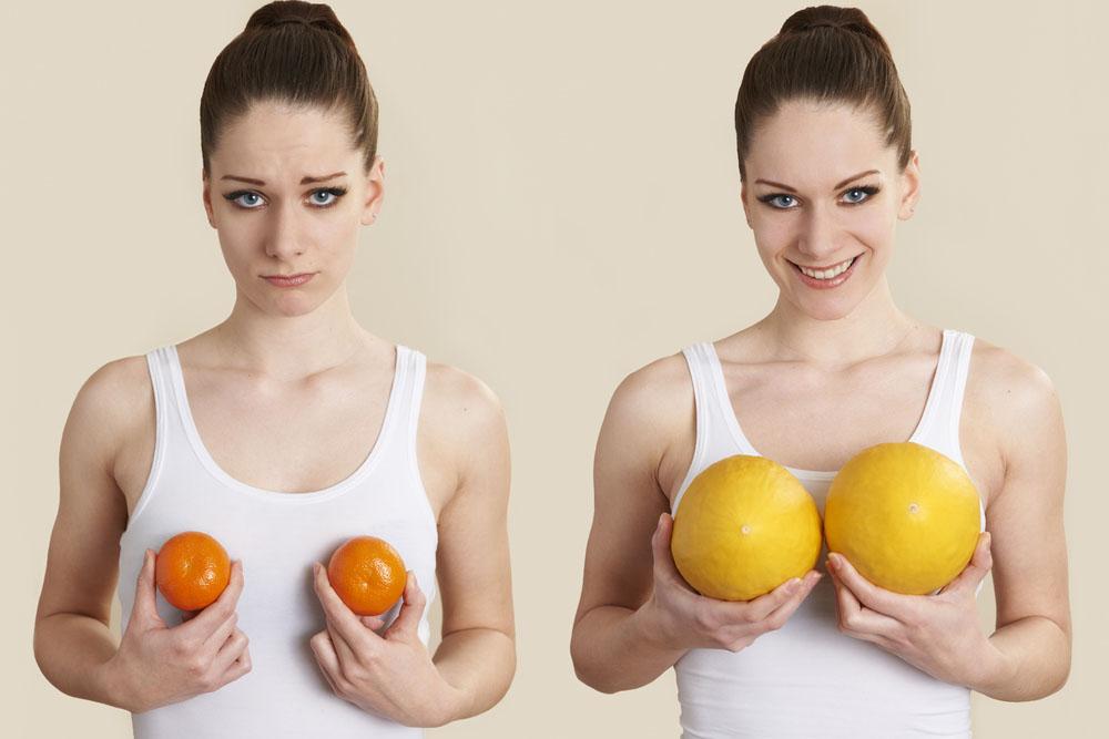 choix implants mammaires