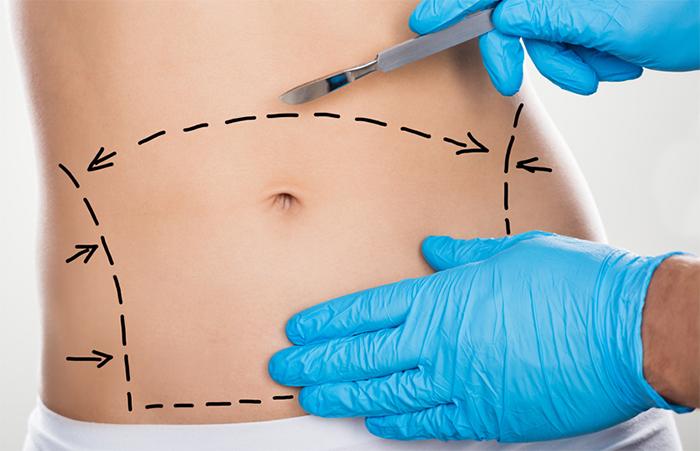 plastie abdominale à tunis