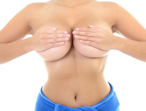 Lifting des seins : quand y faire appel ? Faut-il s'inquiéter des cicatrices ?