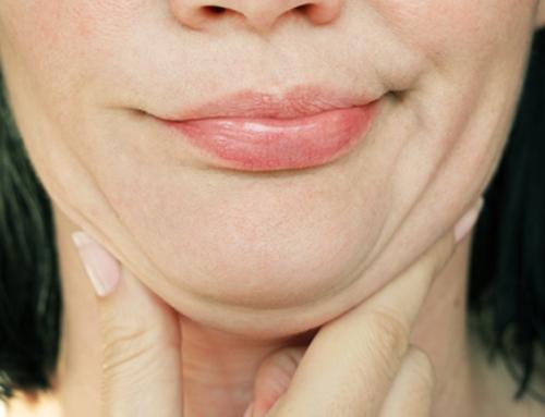 Double-menton : plusieurs causes qui nécessitent une intervention personnalisée