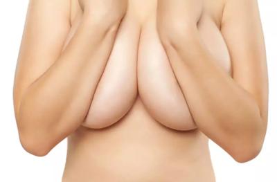 réduction seins tunisie