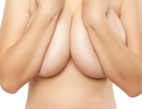 4 faits méconnus au sujet de la réduction des seins