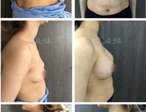 Augmentation mammaire par prothèses rondes dual plane