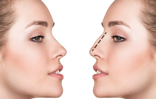 rhinoplastie reduction tunisie