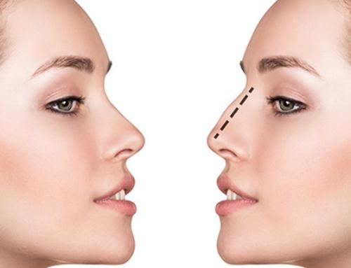 Rhinoplastie de réduction : diminuer la proéminence du nez