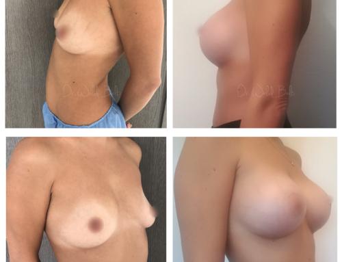 Augmentation mammaire par prothèses dual plane