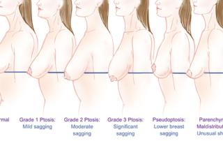 classification ptose mammaire