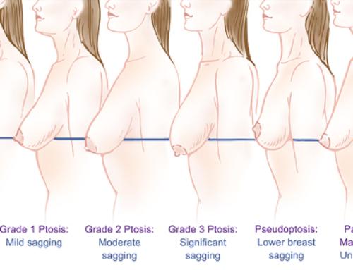 Les différentes options du lifting mammaire