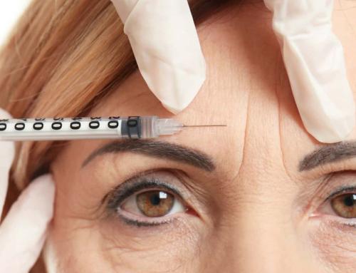 Le Botox n'est pas seulement conçu pour les rides entre les sourcils