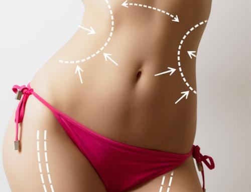 Liposuccion : aujourd'hui encore le meilleur traitement de remodelage de la silhouette
