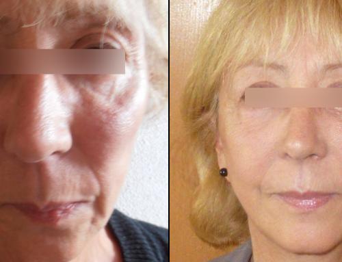 Lifting du cou et de l'ovale du visage