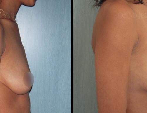 Augmentation mammaire par prothèses anatomiques