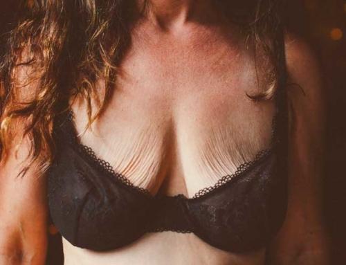 Lifting des seins après l'amaigrissement