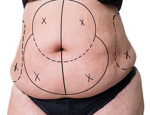 Abdominoplastie : en savoir plus sur la première consultation