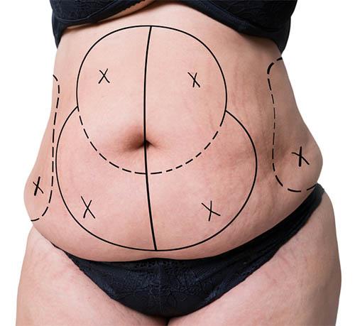 abdominoplastie premiere consultation