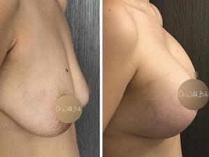 augmentation mammaire avant apres dr balti